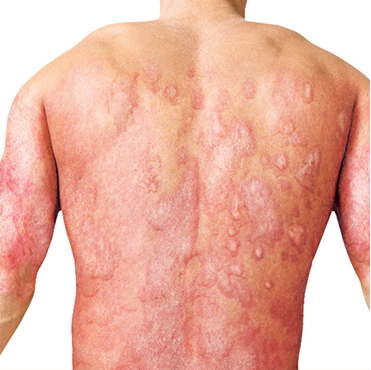 Psoriasis rash on back