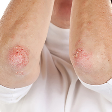 Psoriasis rash on elbows