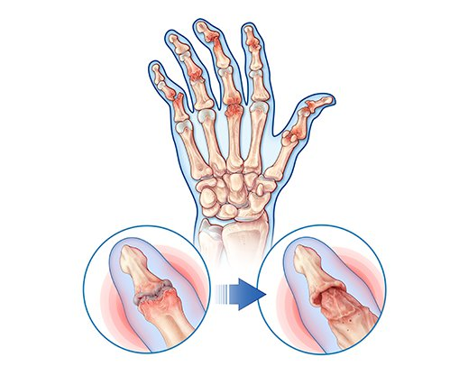 Psoriatic Arthritis Symptoms - swollen fingers