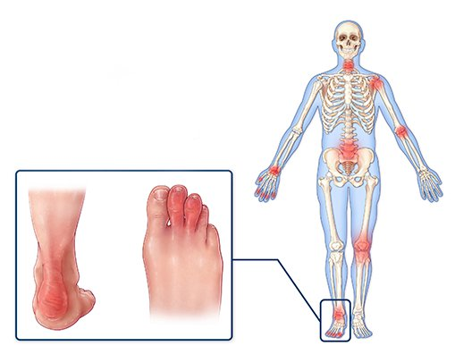Psoriatic Arthritis Symptoms - joint pain and ankle pain